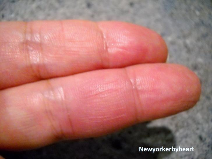 sprængte blodkar i finger